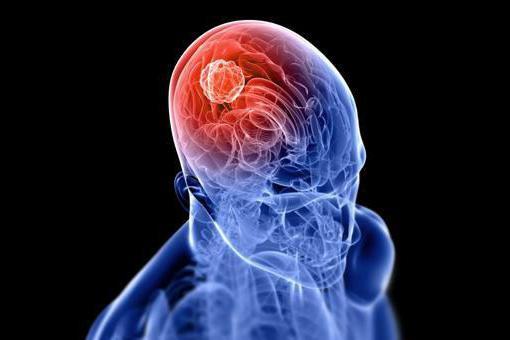 Гематома головного мозга в результате удара