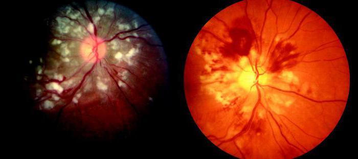 ангиопатия сетчатки сосудов глаза