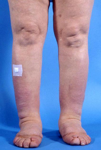 лечение ангиопатии нижних конечностей