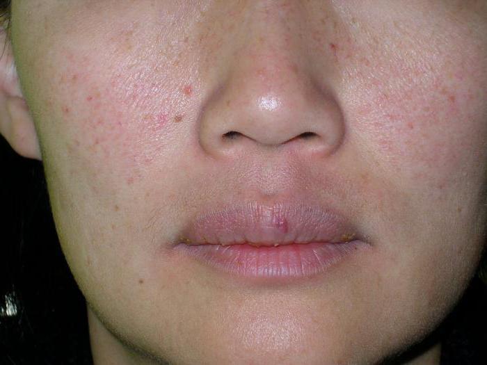 лечение дерматита у взрослых народными средствами