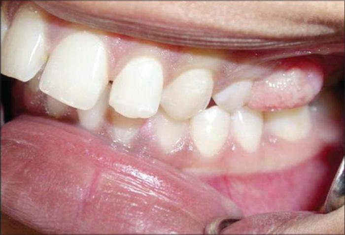 гранулема зуба под коронкой лечение