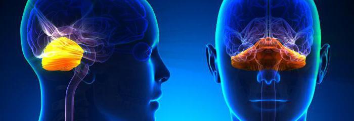 поздняя мозжечковая атаксия