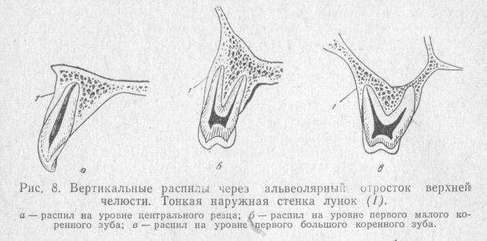 альвеолярный отросток челюсти
