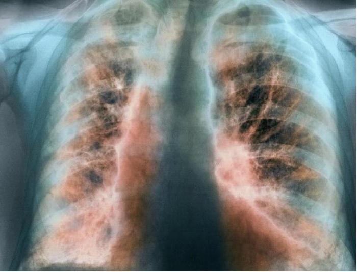 экзогенный аллергический альвеолит диагностика