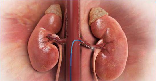 вазоренаьная и ренопаренхиматозная артериальная гипертензия