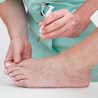 артрит подагрический лечение