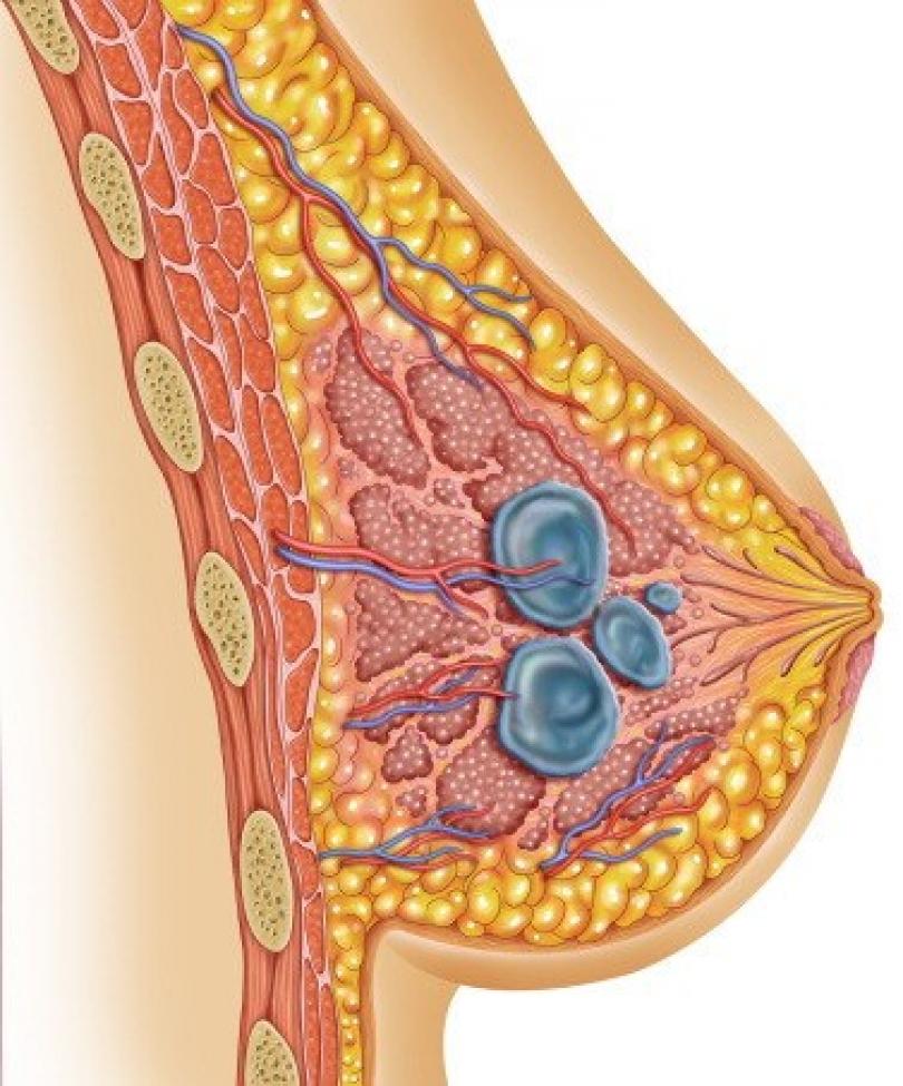 кистозные образования в груди