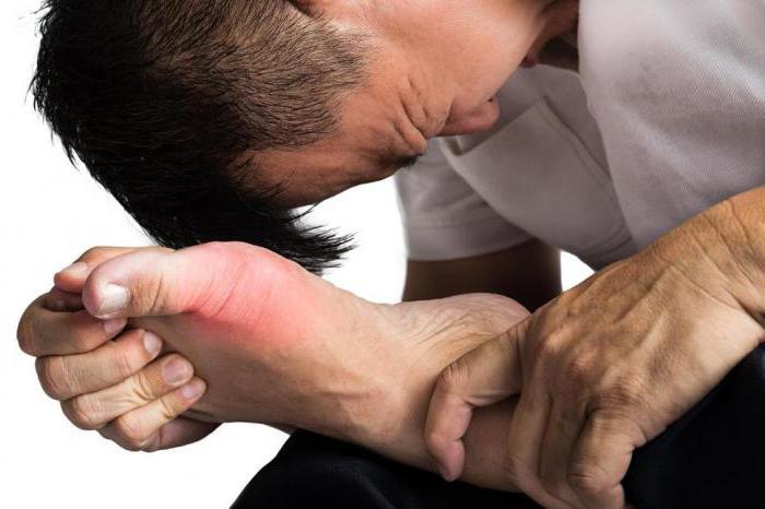 медикаментозное лечение артрита рук
