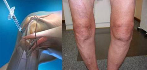 при артрите уколы
