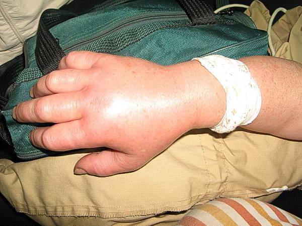первая медицинская помощь при укусе гадюки
