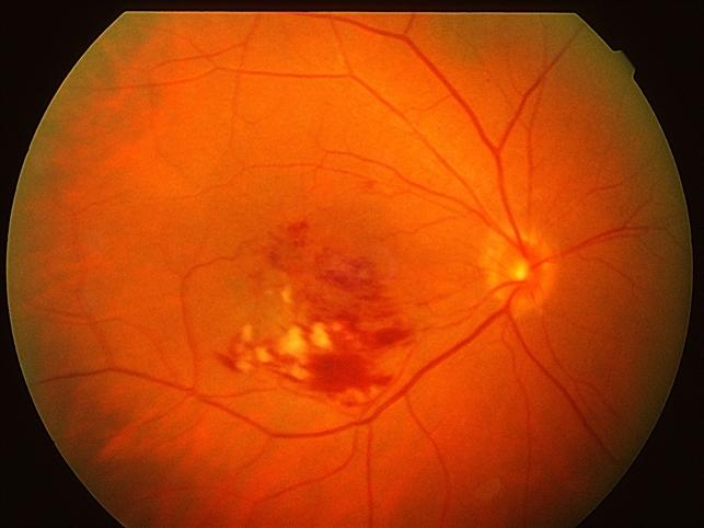 тромбоз сетчатки глаза лечение