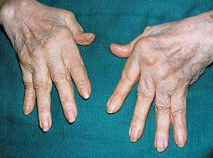 артрит рук лечение и симптомы