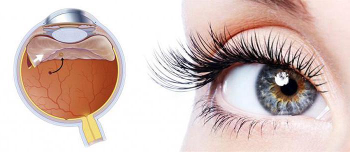 ангиопатия обоих глаз сетчатки