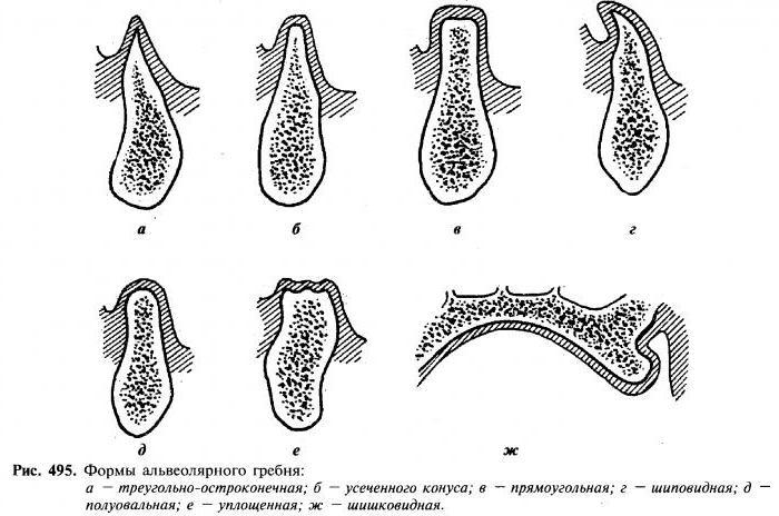 альвеолярные отростки челюстей