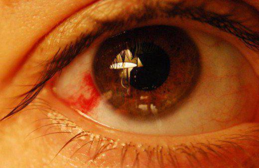 гематома глаза последствия