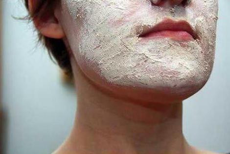 пероральный дерматит на лице лечение