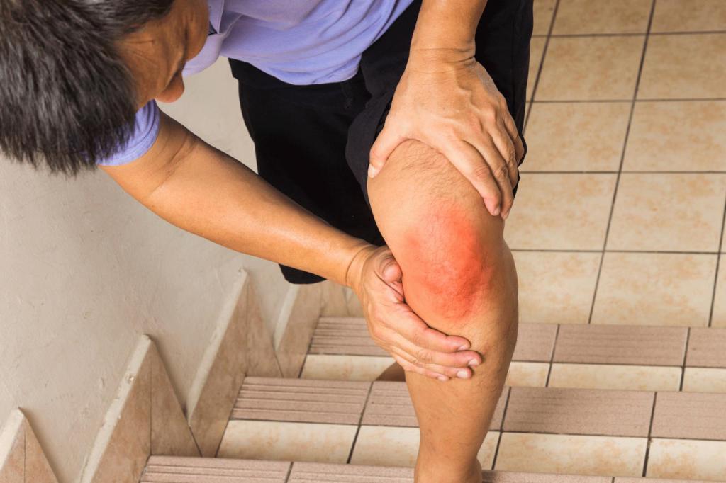 Покраснение сустава при артрите