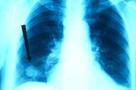 гранулема туберкулезная