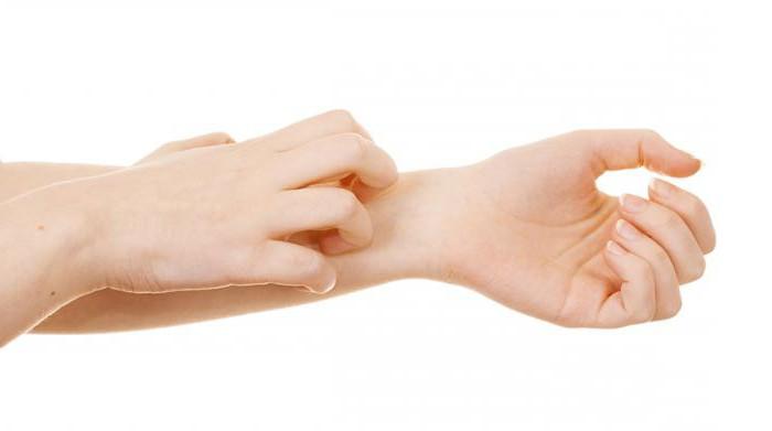 крем от атопического дерматита у взрослых
