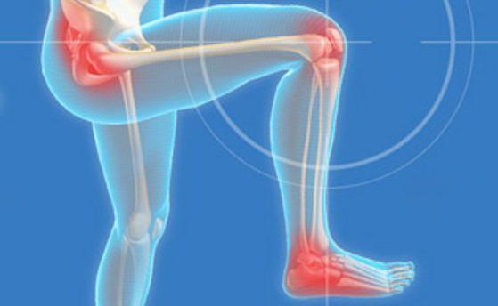 Компрессы при артрите