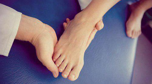 артрит левого голеностопного сустава