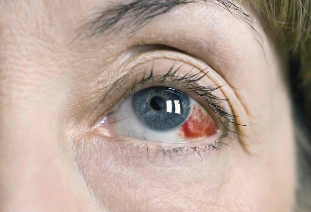 тромбоз центральной вены сетчатки лечение