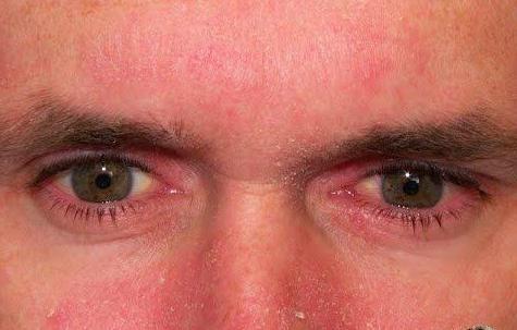 атопический дерматит фото на лице