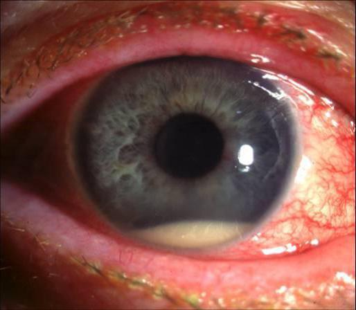 ангиопатия обоих глаз