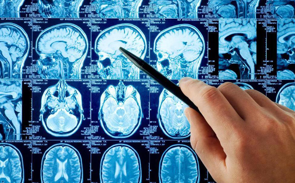 филогенетически обусловленные пороки развития головного мозга человека