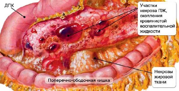 Панкреатит – болезнь поджелудочной железы