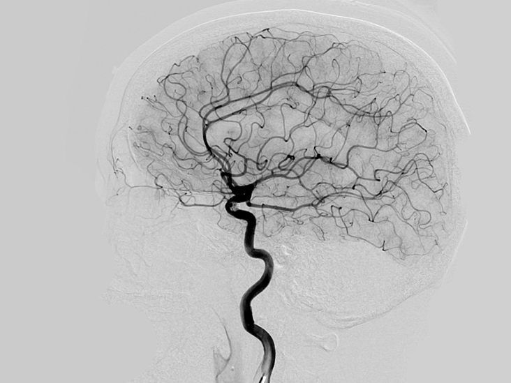 Ангиография головного мозга