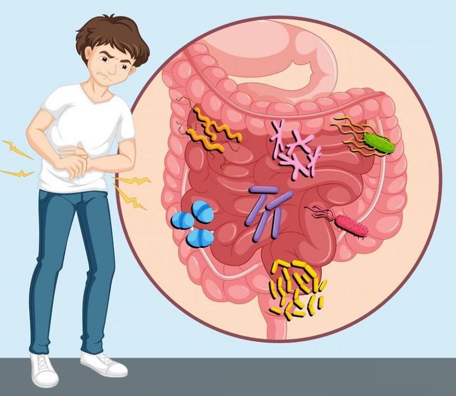 Классификация хронического панкреатита
